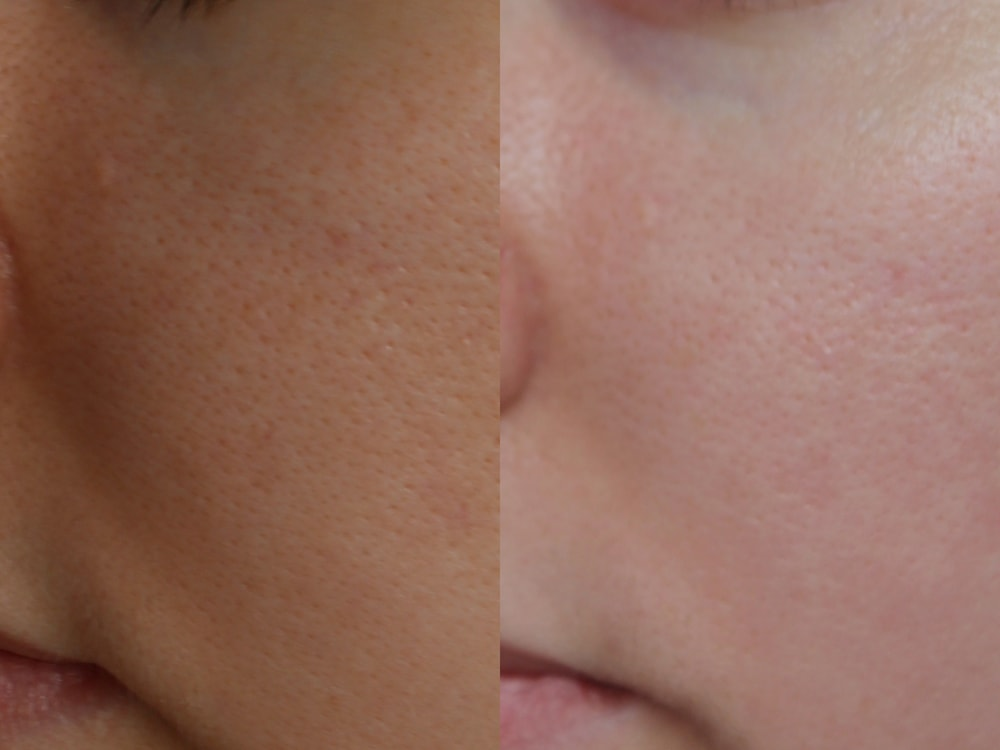 Маска Holika Holika After Mask Sheet - After Sauna